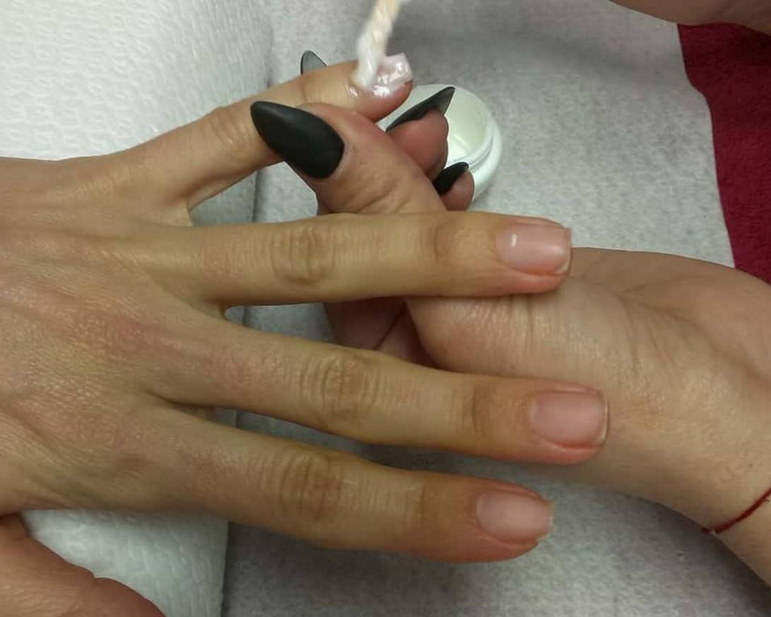 Възстановителна терапия за нокти